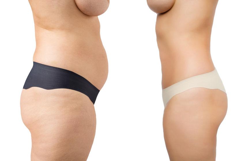 Obesidade é fator de risco para o desenvolvimento do câncer