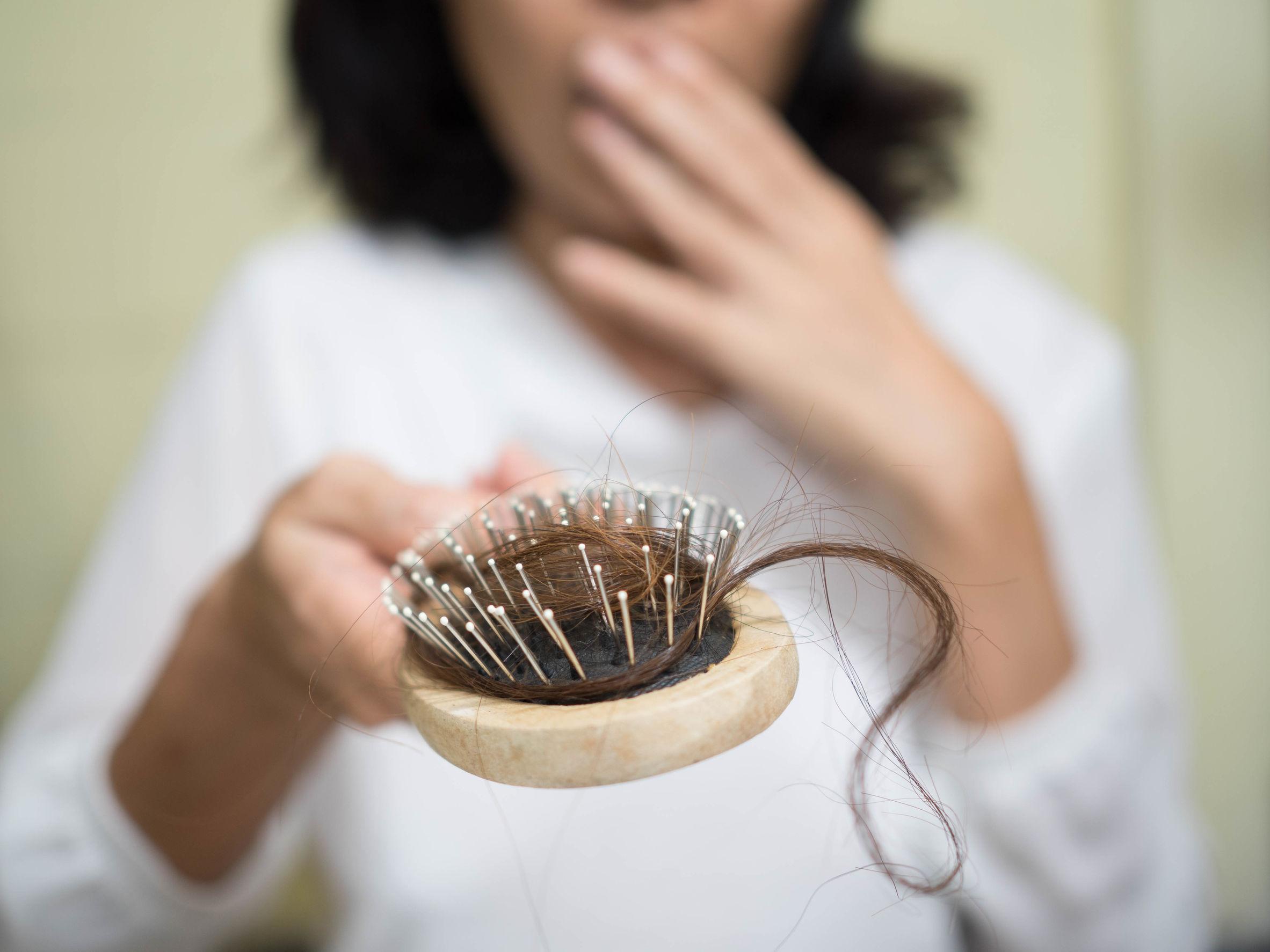 Entenda por que há perda de cabelo após a cirurgia bariátrica