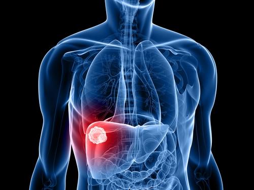 hepatocarcinoma