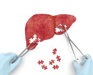 hepatectomia