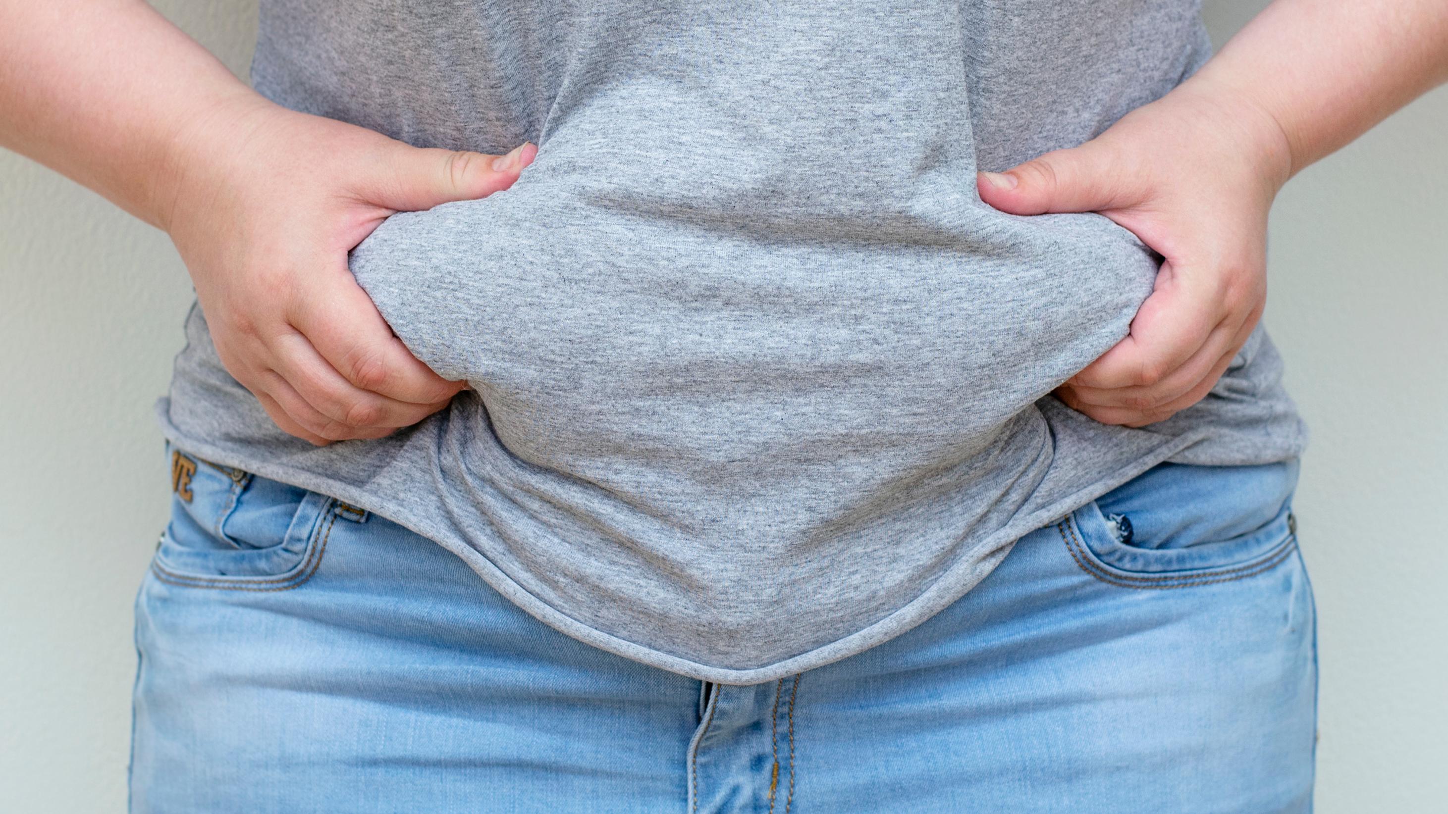 Tudo que você precisa saber sobre obesidade mórbida