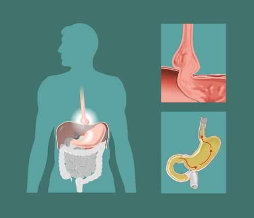 Hérnia de hiato: Sintomas, causas e tratamento