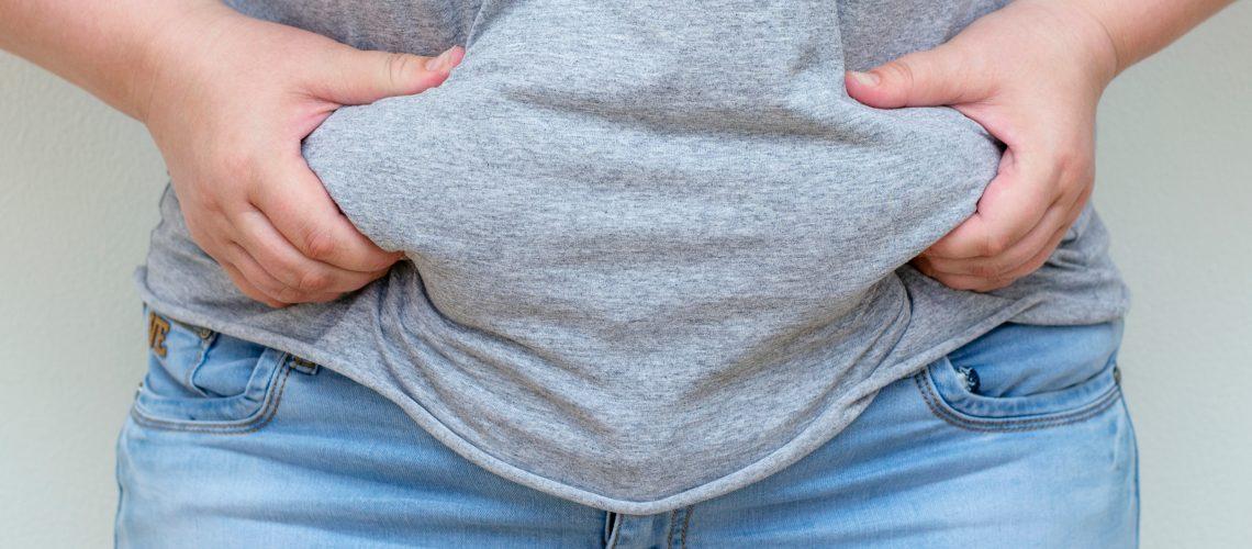 obesidade mórbida